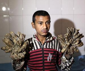 Abul Bajandar, l'uomo che si sta trasformando in albero